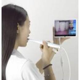 口腔内視鏡カメラ