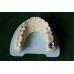 歯科コバルトクロム合金クラウン