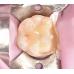 歯科ガラスセラミックインレー