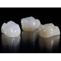 歯科ガラスセラミックべニア