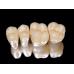歯科ジルコニアオールセラミッククラウン